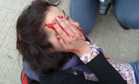 Paulina Rubilar, estudiante de sociología que resultó con heridas en su ojo derecho, según ella, por impacto de una bomba lacrimógena,